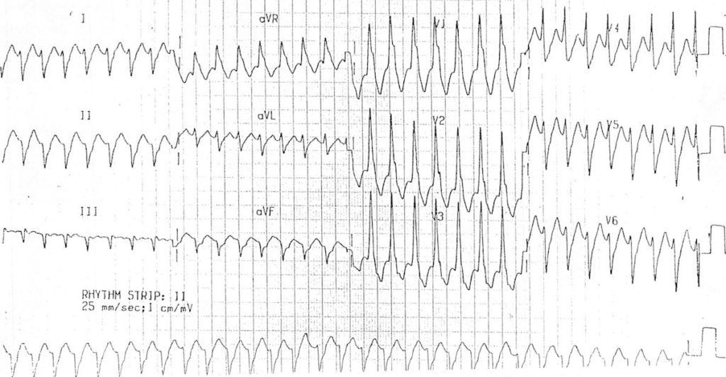 Monomorphic ventricular tachycardia VT 5