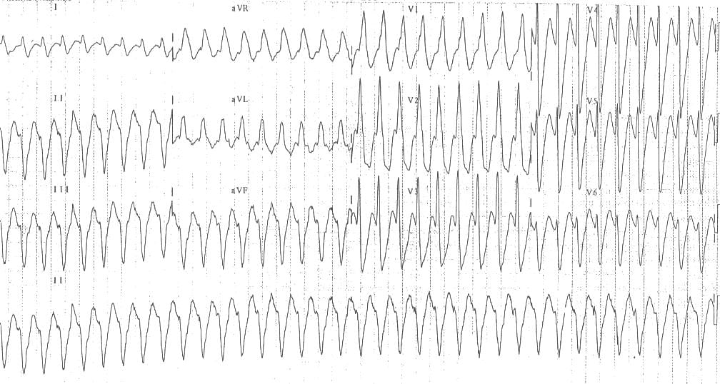 Monomorphic ventricular tachycardia VT 6