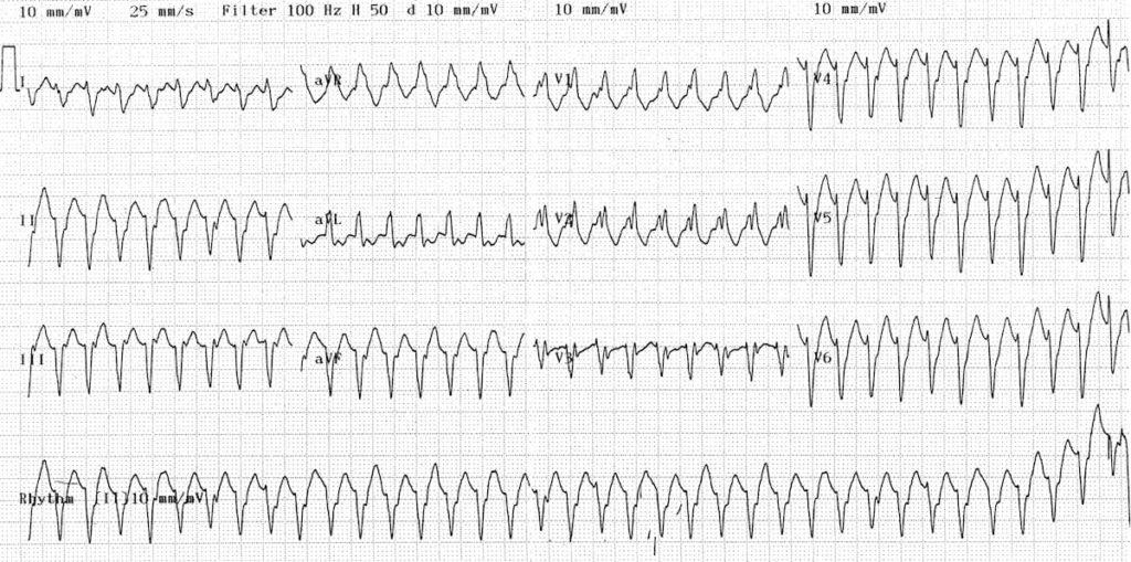Monomorphic-ventricular-tachycardia-VT-71