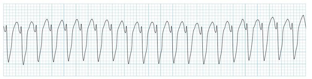 Monomorphic ventricular tachycardia VT