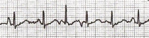 Multifocal-Atrial-Tachycardia ECG 2