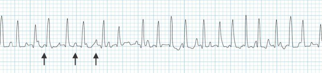 Multifocal Atrial Tachycardia (MAT)