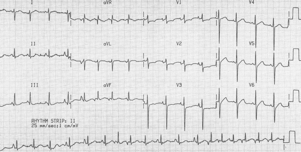 Multifocal Atrial Tachycardia (MAT) COPD 2