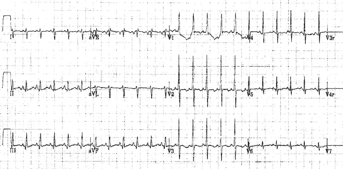 Normal-ECG-neonate