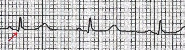 Normal Q wave in V6