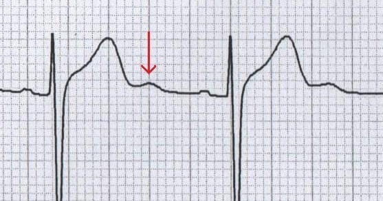 Normal U wave adolescent ECG