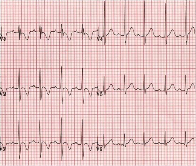 Normal paediatric ECG R wave