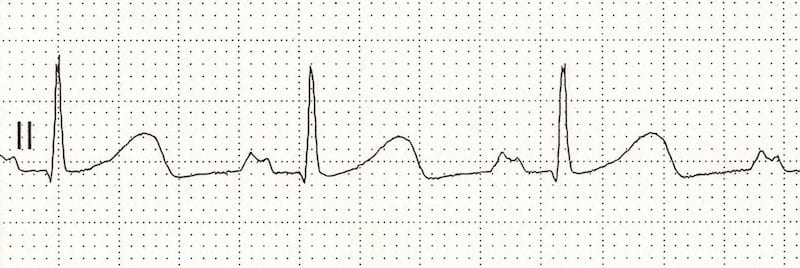P Mitrale P wave ECG library LITFL