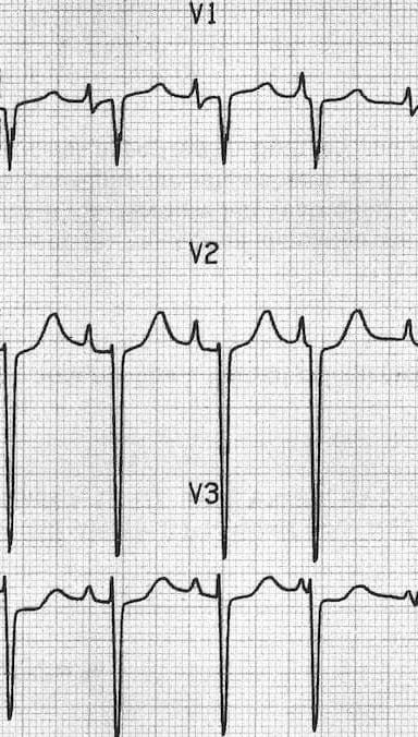 P pulmonale Right atrial hypertrophy in V1 V2