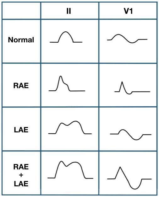 P wave morphology LAE RAE BAE Wagner 2007
