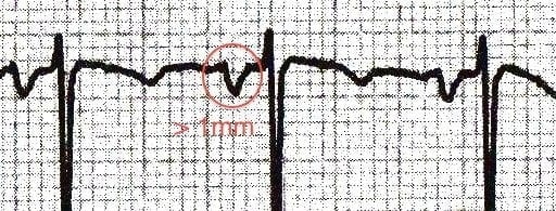 P waves with terminal portion more than 1mm deep in V1