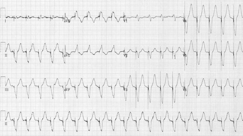 PMT Pacemaker-mediated tachycardia