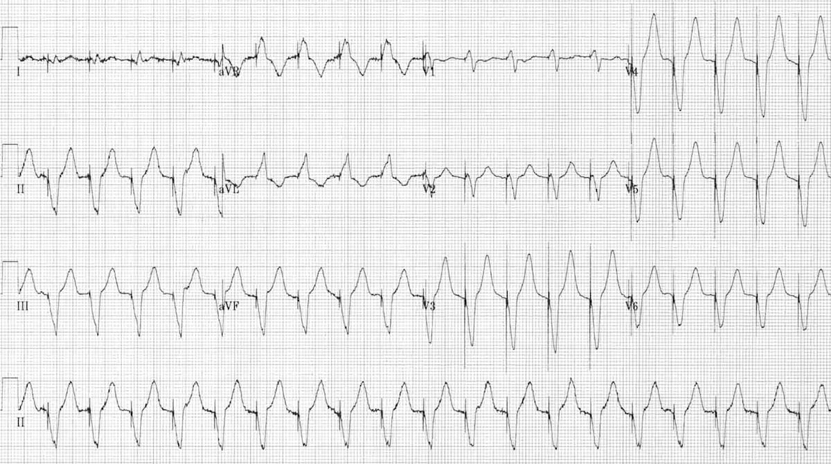 Pacemaker Malfunction • LITFL • ECG Library Diagnosis