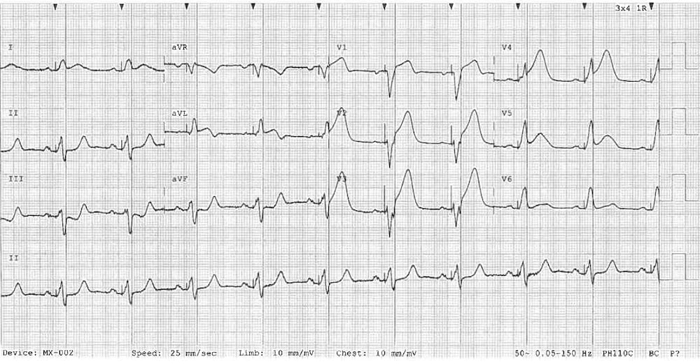 Paced LBBB STEMI Sgarbossa High lateral