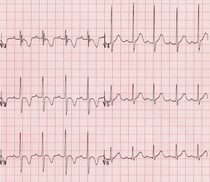 Paediatric T waves Normal T waves 2 year old boy