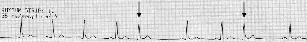 Premature Junctional Complex (PJC) • LITFL • ECG Library Diagnosis