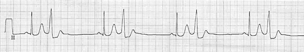 Premature Ventricular Complex (PVC) bigeminy