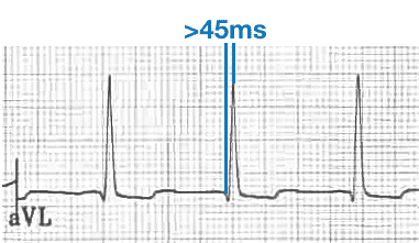 Prolonged R-wave peak time aVL