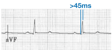 Prolonged R-wave peak time LPFB