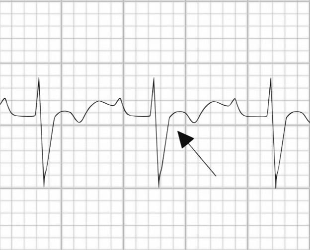Prolonged S-wave upstroke in ARVD