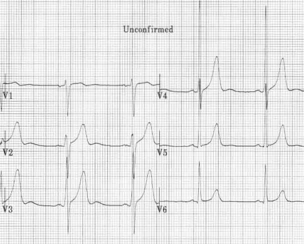 Prominent U waves due to sinus bradycardia