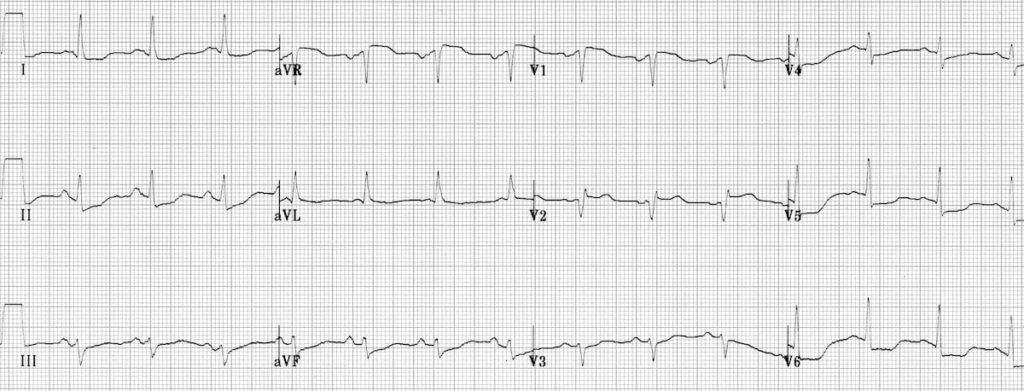 Proximal LAD STEMI ECG