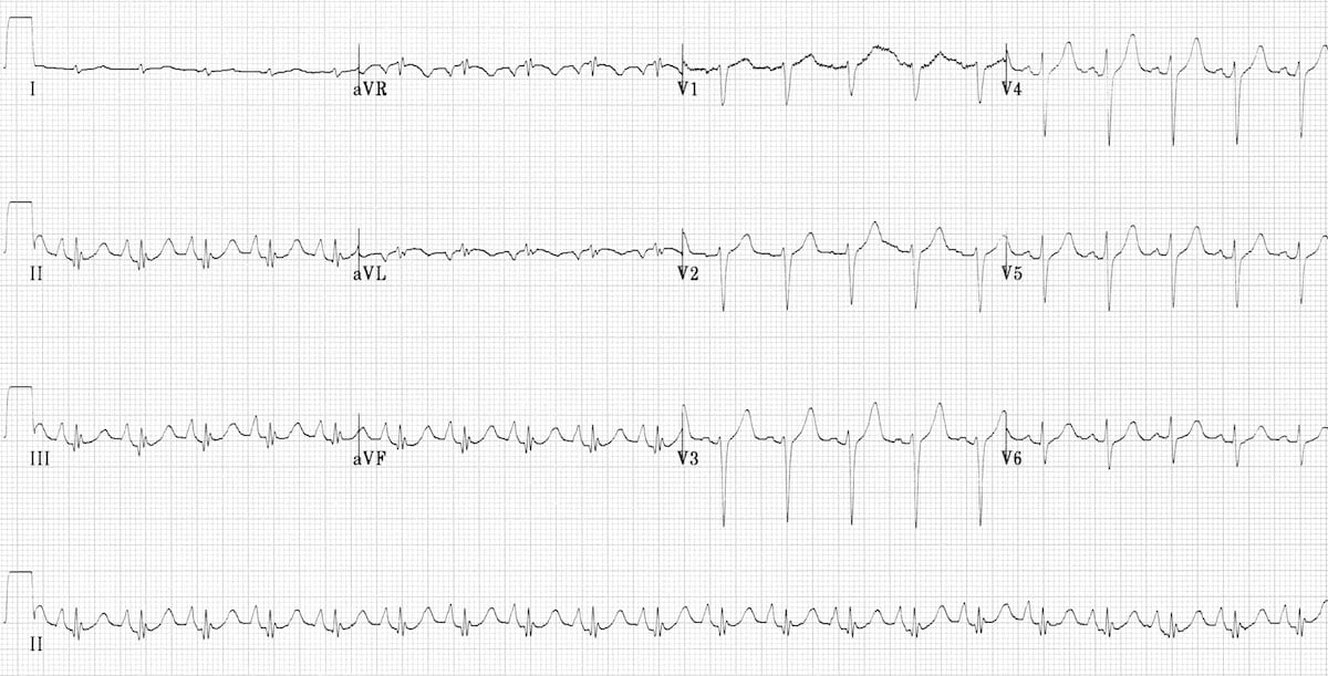 Pulmonary disease pattern