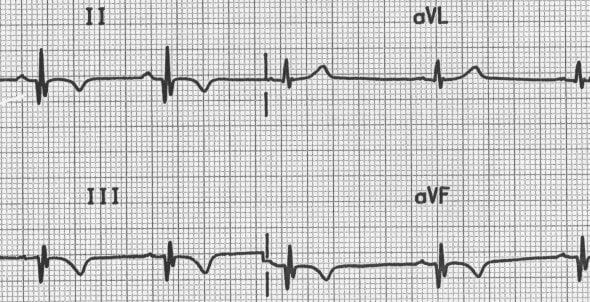 Q waves with old inferior AMI