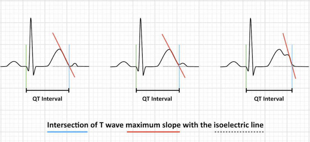QT interval with u waves maximum T wave slope intersection