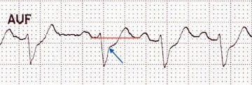 ST depression in aVF relative to the T-P baseline