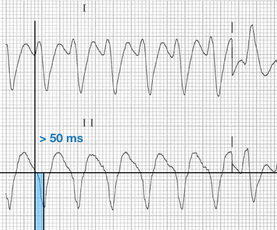 R-Wave Peak Time (RWPT) Lead II negative