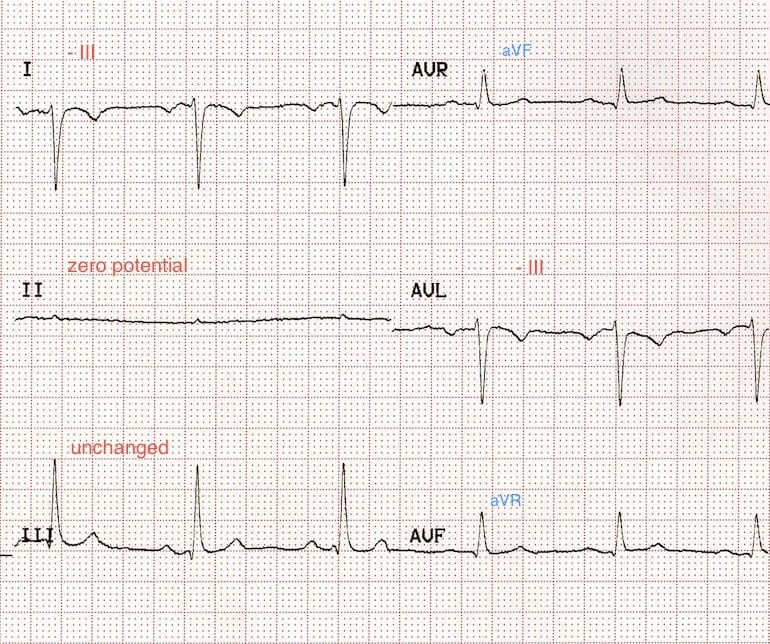 ECG Lead reversal RA-RL