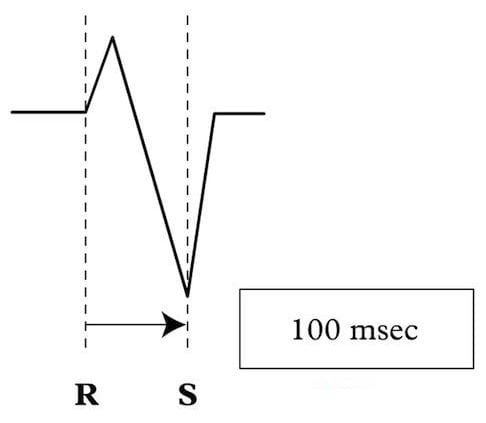 RS-interval