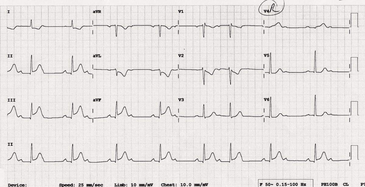 Right Ventricular Infarction • LITFL • ECG Library Diagnosis