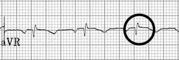 Retrograde P waves in aVR resolved
