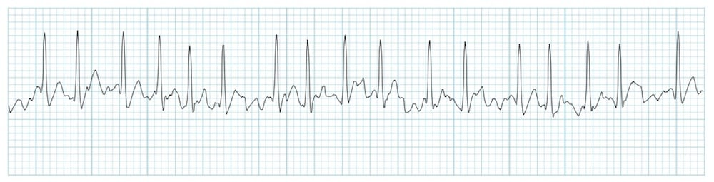 Rhythm Strip LITFL Atrial Fibrillation