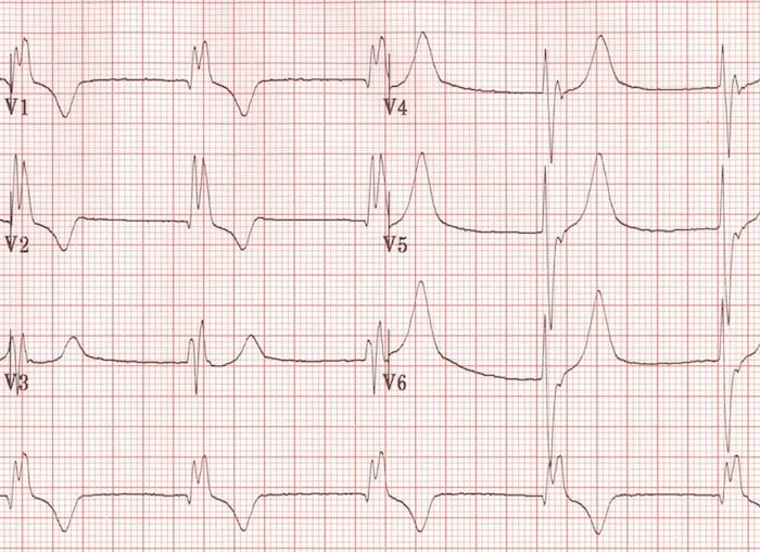 Right Bundle Branch Block RBBB
