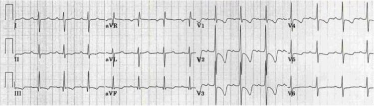 Right Ventricular Hypertrophy (RVH)