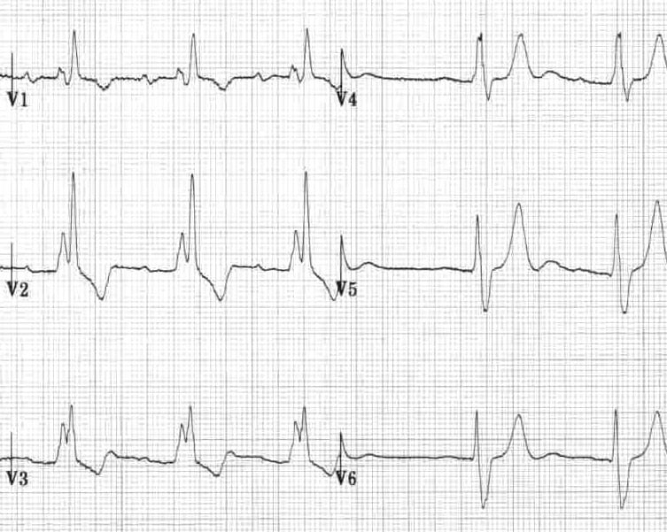 Right bundle branch block with T-wave inversion