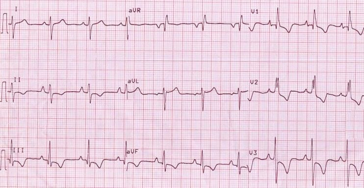 Right ventricular hypertrophy with T-wave inversion