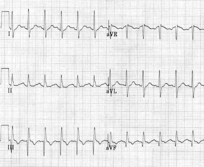 SI QIII TIII pattern in acute PE