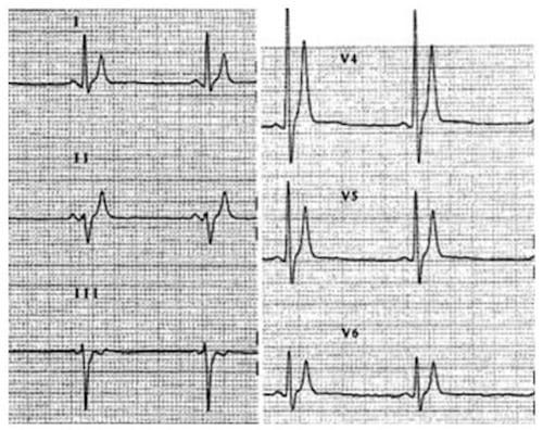 SQTS ECG complex Crotti et al