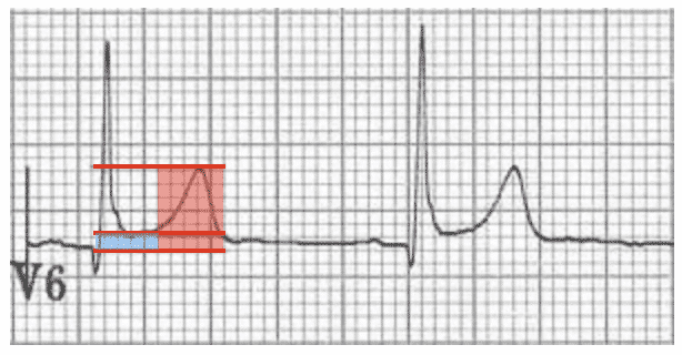 ST-segment-T-wave-ratio-BER
