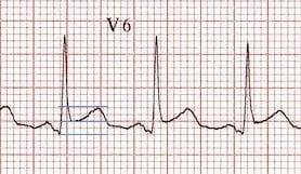 ST-segment-T-wave-ratio-pericarditis