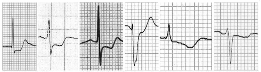 ST segment morphology in myocardial ischaemia