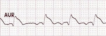 ST elevation in aVR in LMCA occlusion