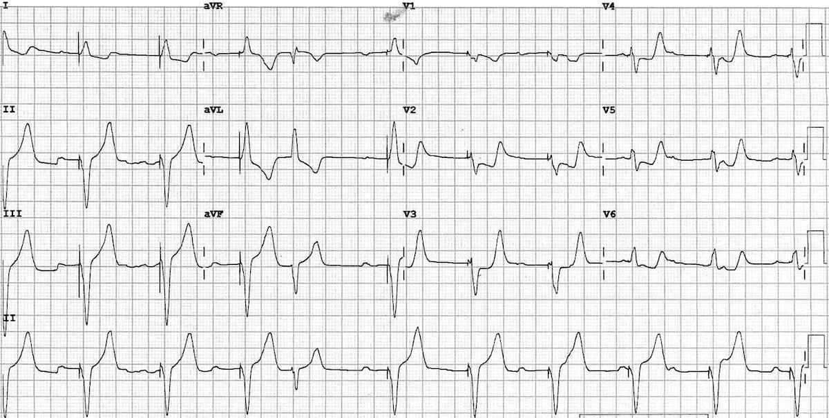 Sgarbossa criteria ventricular paced rhythm