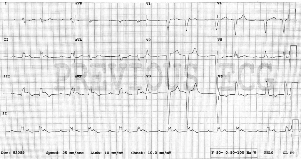 Sgarbossa modified Inferior STEMI CHB 2