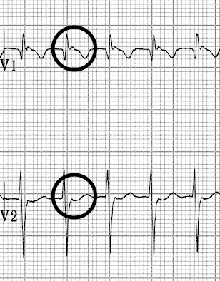 Slow-Fast (Typical) AVNRT Pseudo R' waves in V1-2