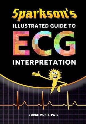 Sparkson's-Illustrated-Guide-to-ECG-Interpretation